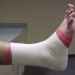 athletic_tape_ankle