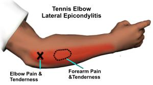 tennis_elbow_symptoms_2