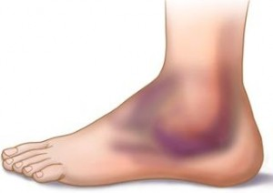 ankle_edema
