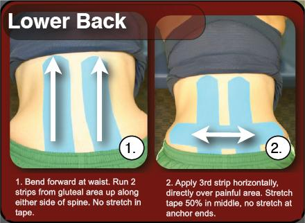 How to Tape Lower Back Pain