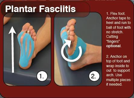 rt_instructions_plantar_fasciitis