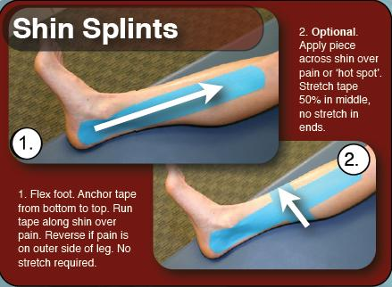 rt_instructions_shin_splints