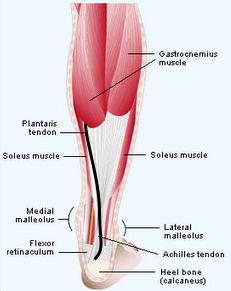 plantaris_tendon_1