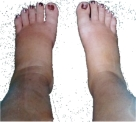 swollen_ankles_pregnancy