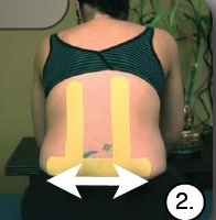 Kinesiology Taping for Lower Back Pain in Pregnancy